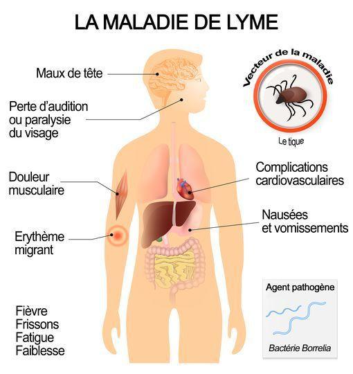 Vivre avec la Maladie de Lyme