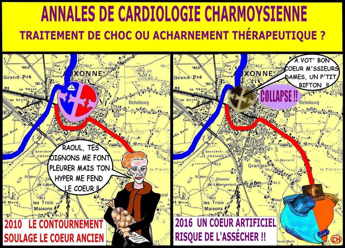 Le Charmoy cardiologie nouvelliste