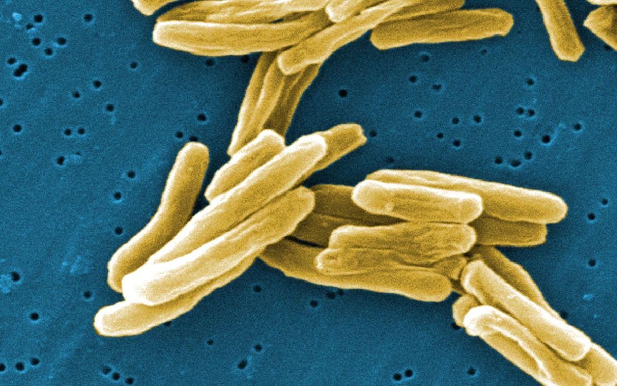 Un vaccin anti-tuberculeux pourtant inefficace chez les singes administré à des bébés par des scientifiques d'Oxford