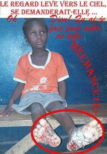 Gagnoa/Maltraitance : Elle brûle la plante du pied d'une adolescente de 6 ans avec une lame incandescente de couteau