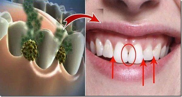 enlever ce qui est lorigine de leur mauvaise haleine que ce soit un repas quils ont consomm ou une bactrie qui pourrait tre dans leur bouche - Comment Enlever Les Mauvaises Odeurs Dans La Maison