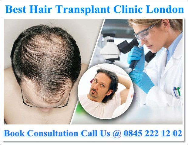 At Natural Transplants Hair Transplant Clinic You Ll Find The Reason Patients E To Us Is Because Of Dr Matt Huebner Who One