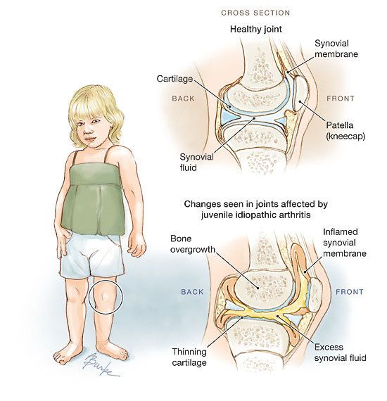 'Is your child complaining of joint pain? It may be juvenile arthritis'