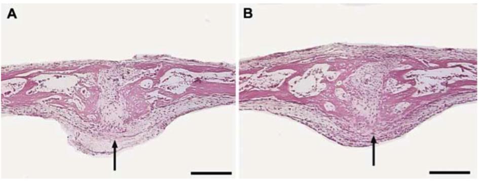 Suture soumise à des forces de traction (à gauche) et suture contrôle (à droite). Apres 2 semaines en culture, en A : suture restée ouverte (flèche noire). En B : suture commençant sa fusion à la partie endocrânienne (pont osseux visible, flèche noire). barre = 200 μm. Ogle 2004