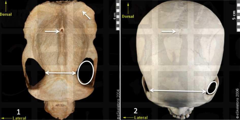 Department of Anthropology. University of Texas at Austin. http://www.eskeletons.org