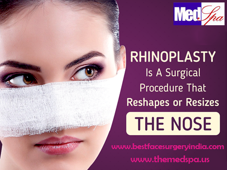 Rhinoplasty surgery–What happens during the surgery?