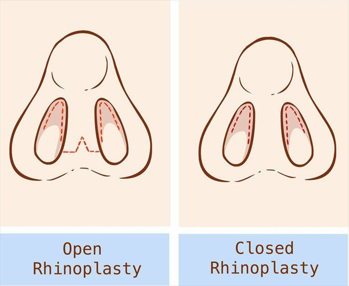 Difference between Open Rhinoplasty and Closed Rhinoplasty