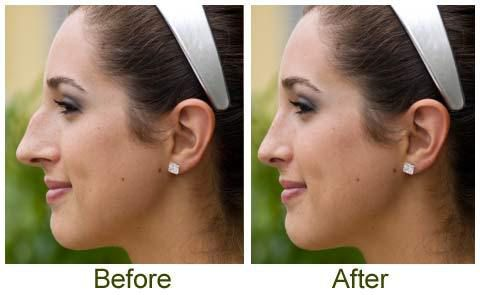 Rhinoplasty Recovery Time Downtime After A Nose Job Cosmetic And Plastic Surgeons In United Arab Emirates