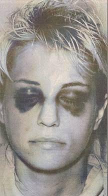 karla-homolka-blessures-violeur-de-scarborough-2-psycho-criminologie.com