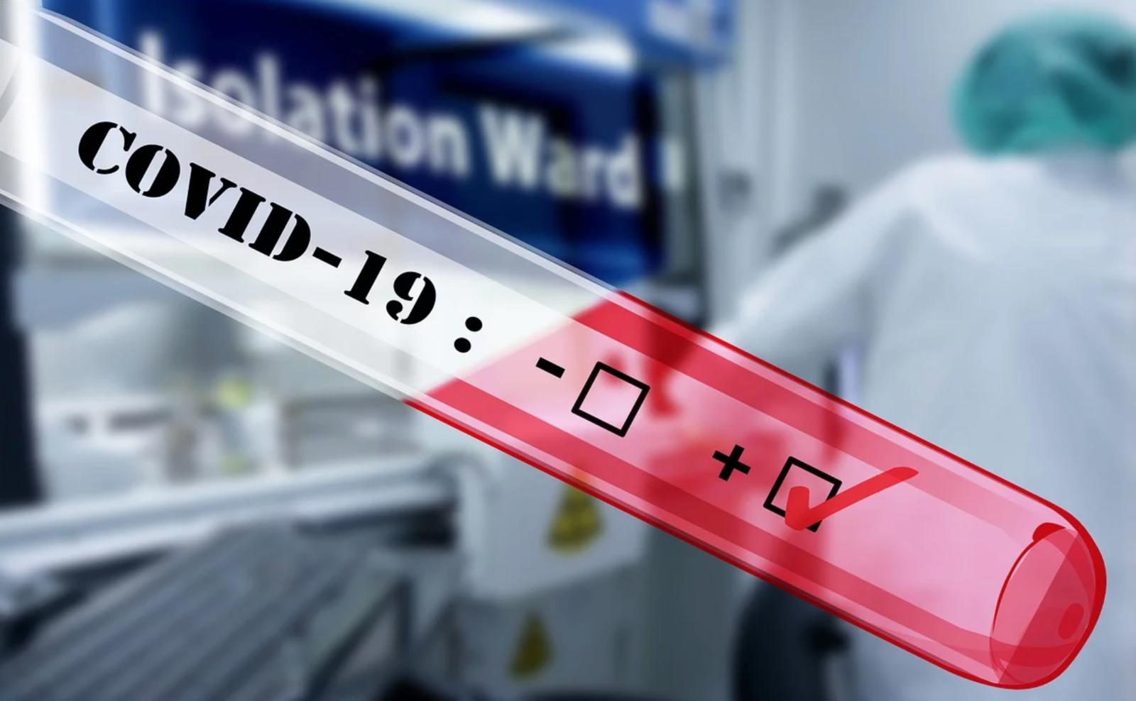 Coronavirus : 284 cas confirmés en Occitanie, dont 47 en Haute-Garonne