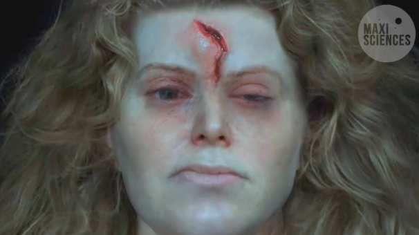 La blessure et le vrai visage de la guerrière de Solør, en Norvège, La Première Femme Guerrière Viking a été découverte en Suède (voir son Casque à Cornes)  La deuxième en Norvège avait été blessée  (Voir on vrai visage)