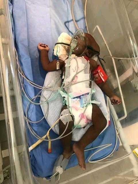 Sophie et Adja ces deux bébés siamoises nées à l'hôpital de Pikine sont séparées suite à une opération réussie avec brio par les professeurs Gabriel Ngom et Mary ndoye de l'hôpital pour enfants ALBERT ROYER.  Un ouf de soulagement forcément pour les parents de ces deux petites qui sont nées il y'a de cela 48jours. Actuellement elles sont en réanimation