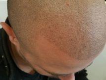 Micropigmentation capillaire