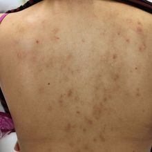 How to Get Rid of Your Back Acne With Exposed Skin Care