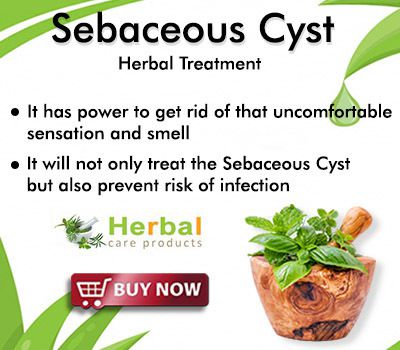 Natural Remedies for Sebaceous Cyst and Prevention Rapidly
