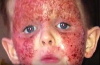 Le calvaire du petit Brensen et l'endettement de ses parents après 5 vaccins