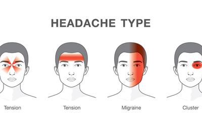 Attention urgence vitale : Voici 4 maux de tête qui doivent vous faire consulter un médecin d'urgence !