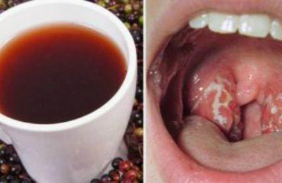 Voici comment vous pouvez vous débarrasser de l'infection de la gorge naturellement en 4 heures seulement.