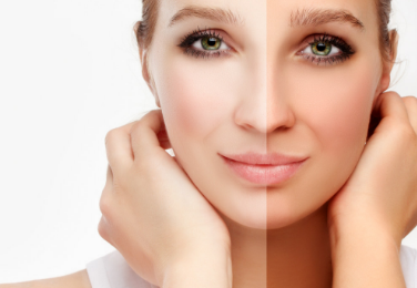 What is Melanotan and How It Works