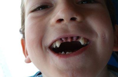 Mes premiers soins dentaires: un vrai p'tit diable!