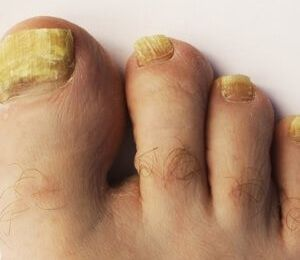4 Drugs for Toenail Fungus