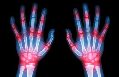 Fibromialgia o Artritis Reumatoide ¿que tengo?