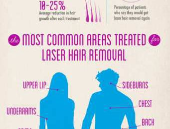 Growing Popularity of Laser Hair Removal