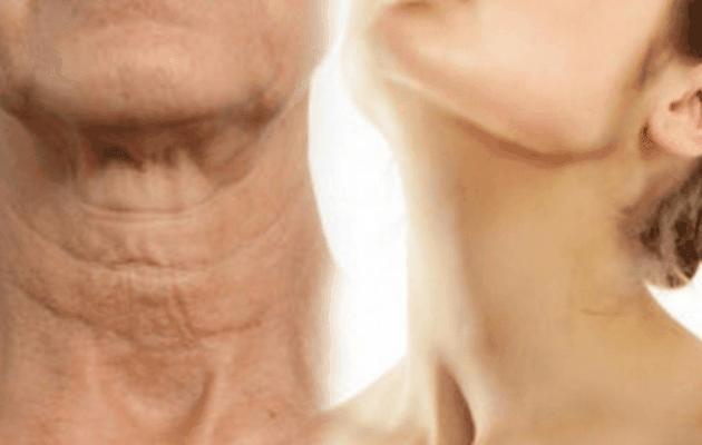 Facile façon de faire le cou jeune - méthode étonnante