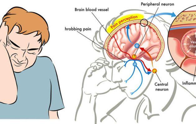Comment arrêter instantanément une migraine avec du sel