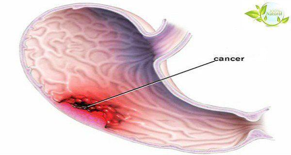 Cancer de l'estomac : un tueur silencieux - les symptômes les plus courants (ne les ignore pas)