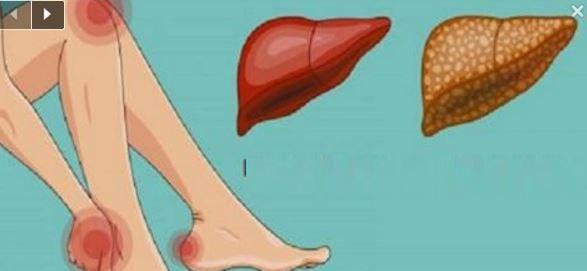 Ces signes vous avertissent que votre foie est surmené et surchargé de toxines !
