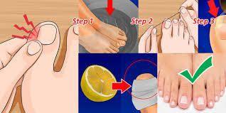 Comment faire pour supprimer un ongle incarné