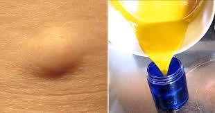Quel remède pour traiter les lipomes naturellement ?